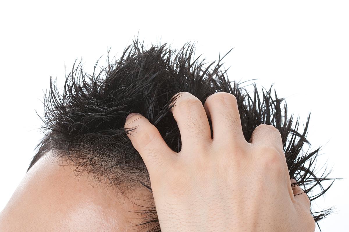 恵比寿美容クリニック 独自手法によるAGA・薄毛治療 検査項目も豊富