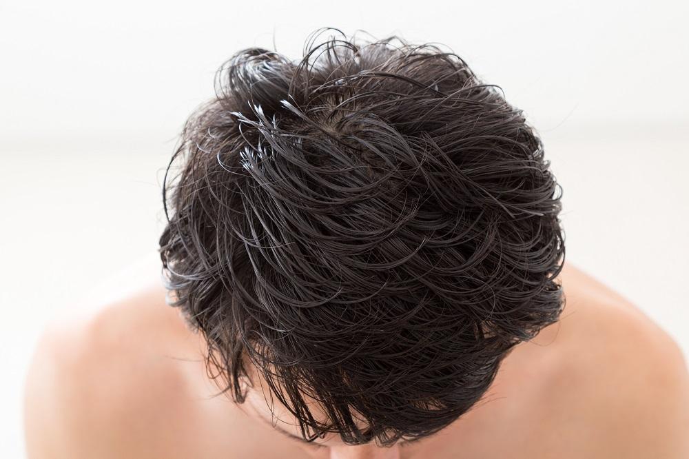 AGA発毛専門クリニック「アゲインメディカルクリニック」
