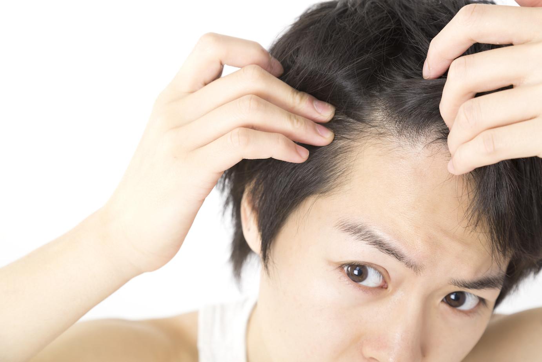 「親和クリニック 」で自毛植毛 独自の技術「MIRAI法」で施術の痛みが少なく、自然な仕上がりに!