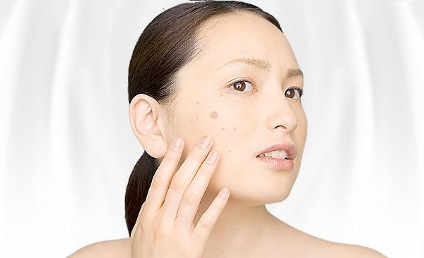 女性にとってシミは美容の大敵!シミ治療には何がある?