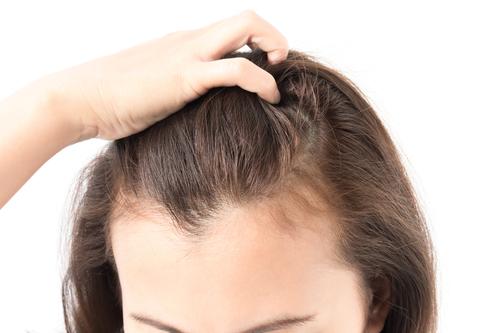 「イクモア」育毛サプリで女性の抜け毛・薄毛を改善 1日3粒飲むだけ?!